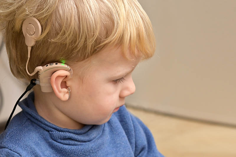 A Boy With A Hearing Aids And Cochlear Implants Monkey Mouths